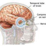 Epilepsi (Sara) Nedir?
