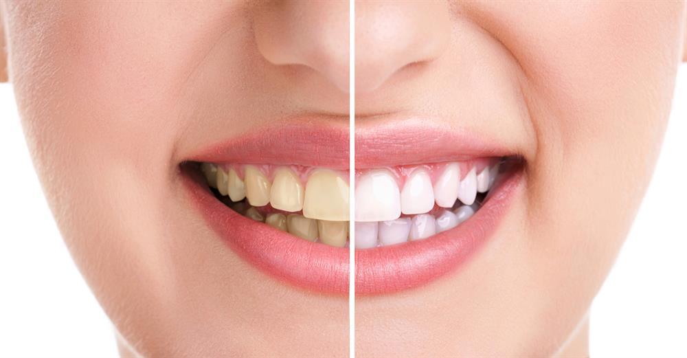 Siyah Diş Macunu Nedir?Faydaları Nelerdir?